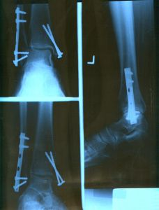 Personal Injury Xray Films